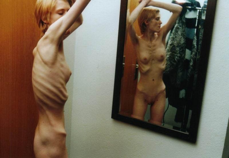 Фото голых очень худых женщин
